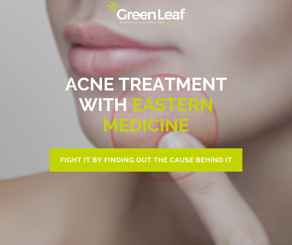 acne treatment, eastern medicine, green leaf clinic, acupuncture, herbal medicine